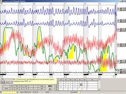На детекторі брехні перевіряють чиновників більш ніж у 80 країнах світу - експерт