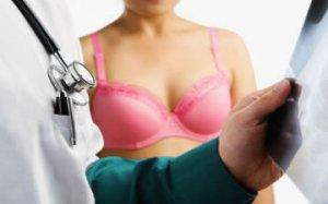 Цукор провокує рак грудей