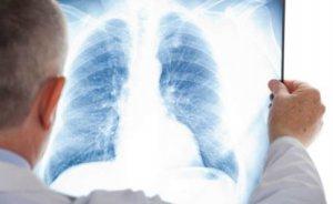 На Буковині зафіксували 117 хворих на COVID-19: найменше за три тижні